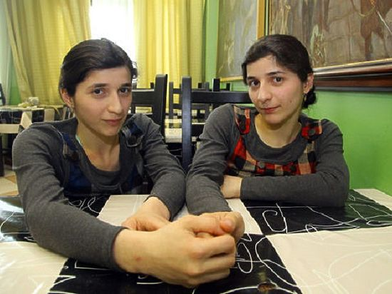 Сиамский близнец Зита Резаханова умерла после тяжелой болезни
