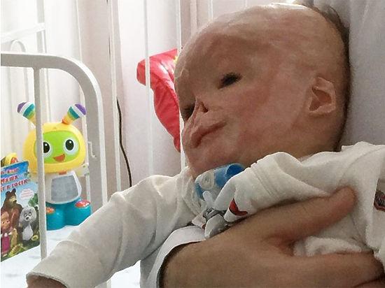 Московские врачи разъяснили слухи о тяжелом состоянии обожженного Матвея