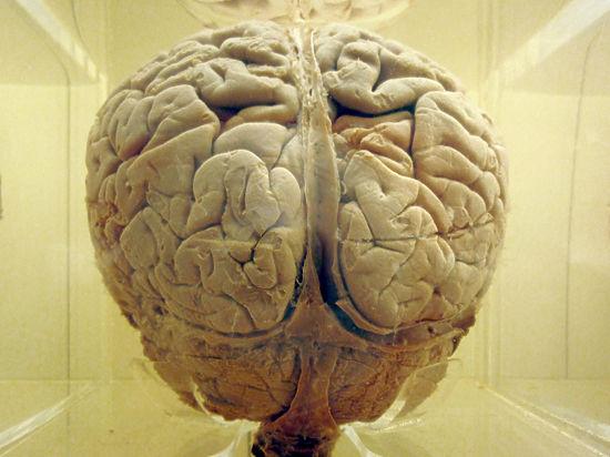 Мозг у добрых людей оказался больше, чем у злых