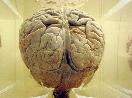 Генетики обнаружили мутацию, значительно понижающую уровень интеллекта