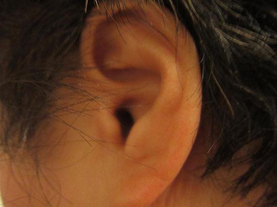 Ученые напечатали ухо, челюсть и мышцу человека на 3D-принтере