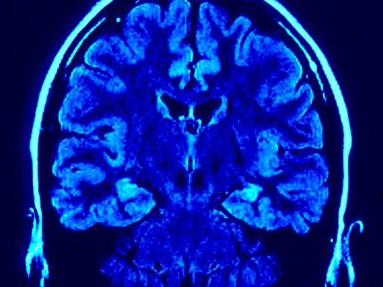 Нейрологи изучили реакцию мозга на телепортацию