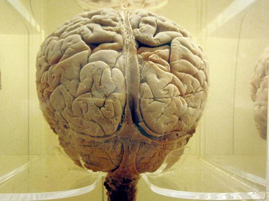 Нейрофизиолог развенчал миф о творческом и логическом полушариях мозга