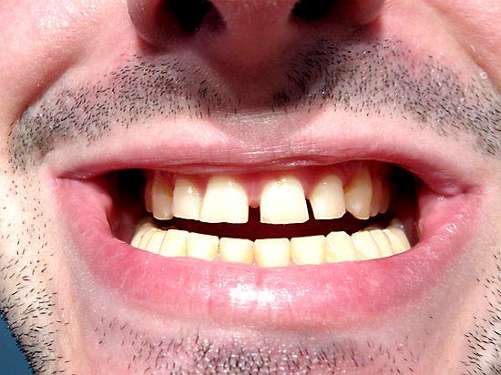 Микробиологи нашли бактерию, защищающую зубы от кариеса