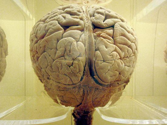 Представлена трехмерная карта расположения слов в мозге человека