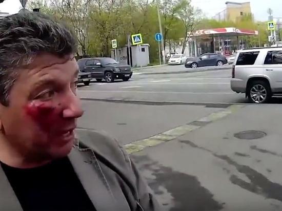 Он ударил локтем активист СтопХам рассказал о нападении районного депутата