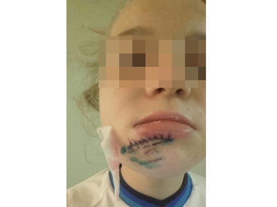 Девочка разбила лицо наквест-игре. Помощи ребенку неоказали