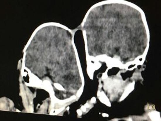 ВПодмосковье хирурги распределили сросшихся головами близнецов