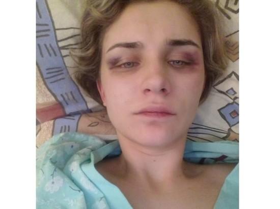 Свекровь оскальпированной жительницы Лебедяни: