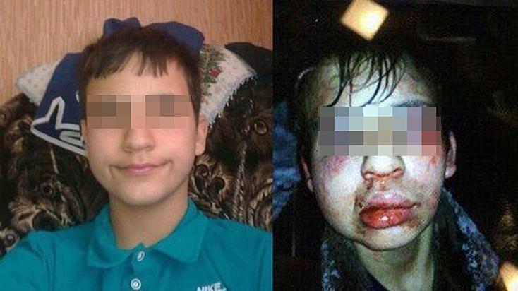 Мать избитого в Покрове подростка-инвалида: «Мне посоветовали не лезть»