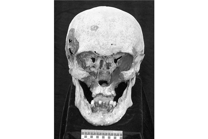 «У Николая II были серьезные проблемы с зубами»