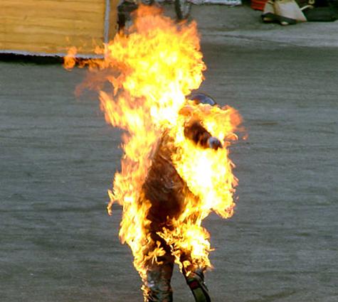 Пьяница сжег себя, чтобы попасть в больницу