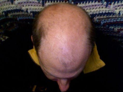 Зарубежные ученые вырастили волосы в пробирке