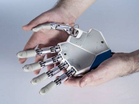 Обладатель бионического протеза приехал в Москву