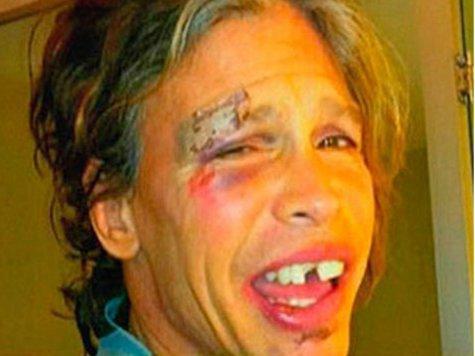 Стив Тайлер выбил себе зубы