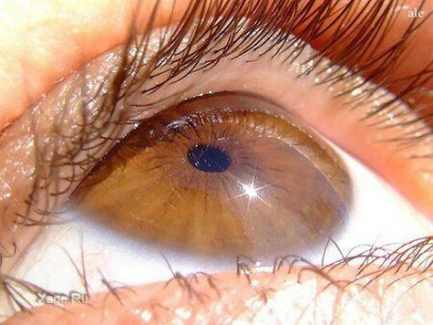 Впервые из стволовых клеток удалось вырастить сетчатку человеческого глаза