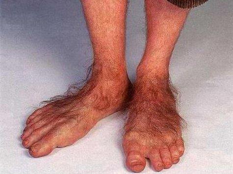 Ученый из США предложил странную теорию возникновения ног