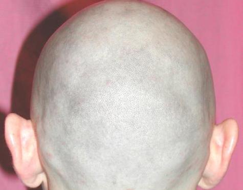 У лысых блондинов появилась надежда стать волосатыми брюнетами