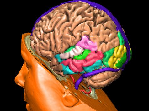 Впервые в медицине: У девятилетнего мальчика начал сжиматься мозг