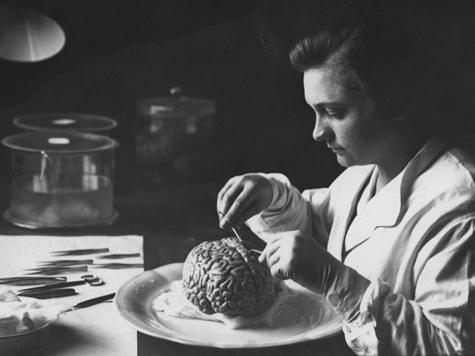 Лаборантка Института мозга снимает мозговые оболочки. 30-е годы.
