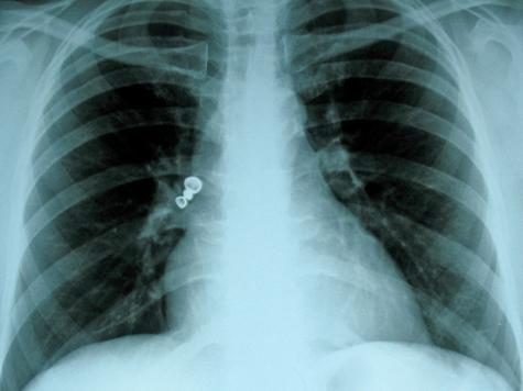Рентгеновский снимок можно будет сделать фотокамерой