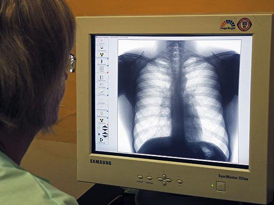 Среди обследованных методом спирометрии симптомы астмы обнаружены у каждого четвертого