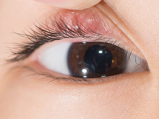 Чтобы воспаление глаз не отняло зрение
